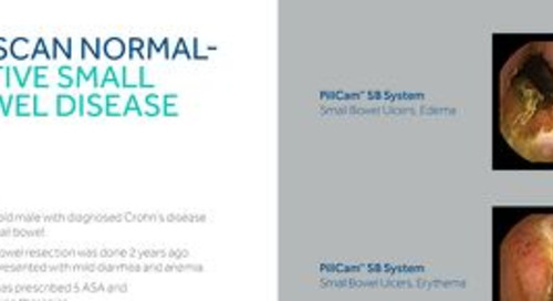 PillCam™ SB 3 Case Study: CT Scan Normal – Active Small Bowel Disease