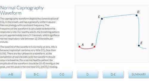Capnography Waveform Tutorial and Exercise Website [Get Started]