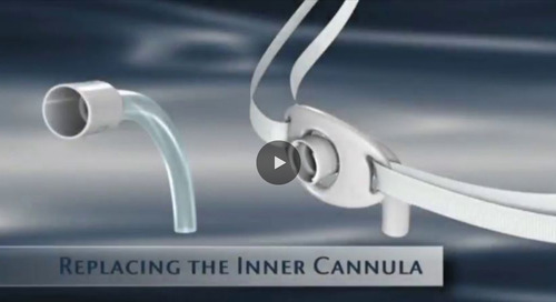 Replacing the Inner Canula  [Watch Now]