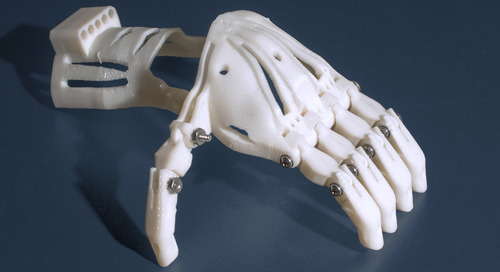 The Next Generation of Prosthetics