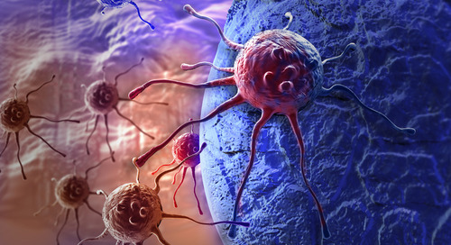 Preclinical Modeling of T Cells in Immuno-Oncology
