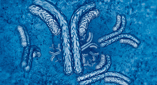 aPC activates a new strategy for preventing graft versus host disease