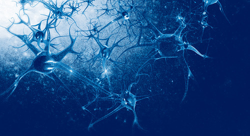 Investigating Stroke Therapeutic Targets Using JAX Aged C57BL/6J Mice