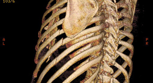 Rib Fractures: Essentials of Management and Treatment Options