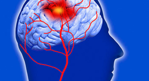 Time is brain so BEFAST to recognize stroke