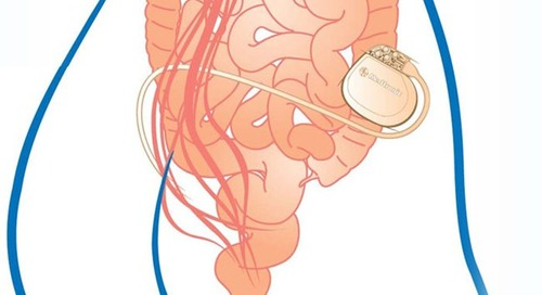 Neuromodulation device success for patients with fecal incontinence