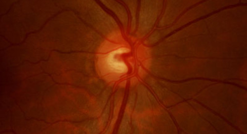 Drug treatment and weight loss restores vision in a blinding disorder linked to obesity