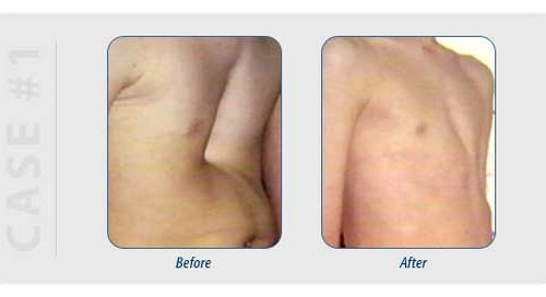 Fixing Chest Wall Deformities: A Minimally Invasive Option